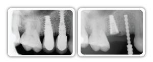 Dental Implants Los Angeles